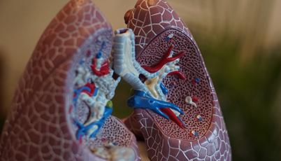 SHC Clinical Documentation Improvement  - Respiratory Failure Shock Definition - Online Banner